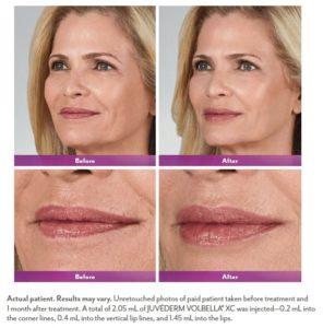 Kybella Bioderm Skin Care Laser Center