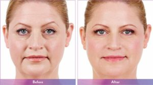 Arlington Photofacial & IPL Treatments Garland TX - BioDerm