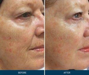 MicroNeedling with Skin Pen - BioDerm Skin Care & Laser Center